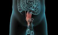机器人前列腺切除术医疗三维动画