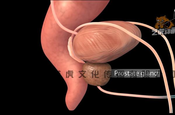 前列腺医学三维动画