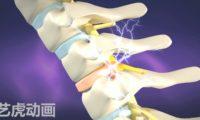 三维动画演示医学腰椎手术视频